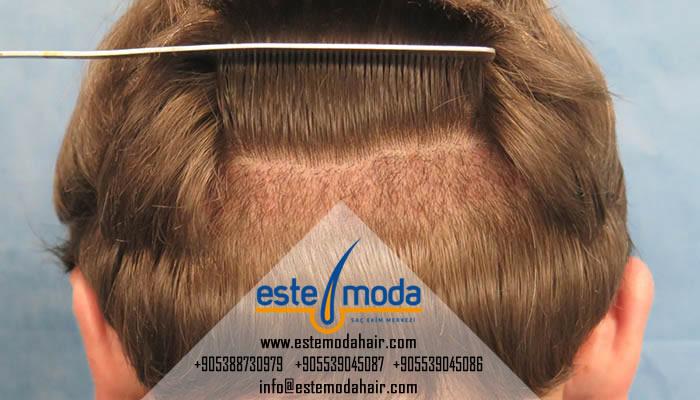 Saç Ekimi Vertex