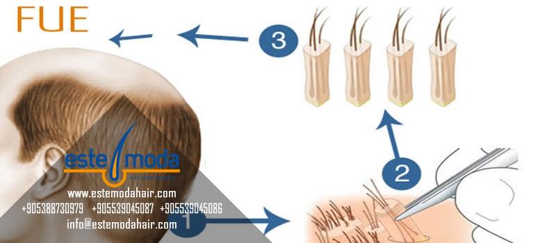 Saç Ekimi Enfeksiyon