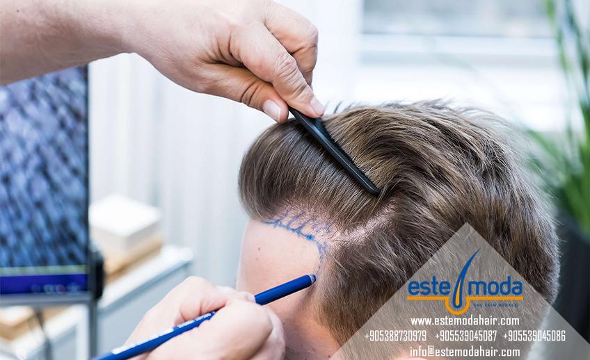 Saç Ekimi Uygun Fiyat