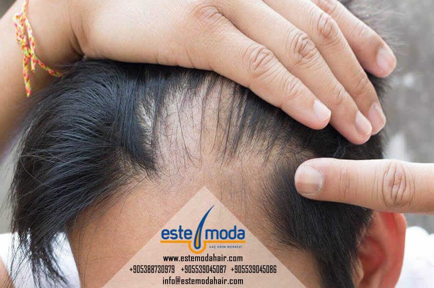 Saç Ekimi Greft Hesaplama Programı